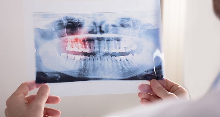 Bone Grafting in Bolton